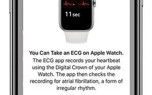 How to use ECG on the Apple Watch